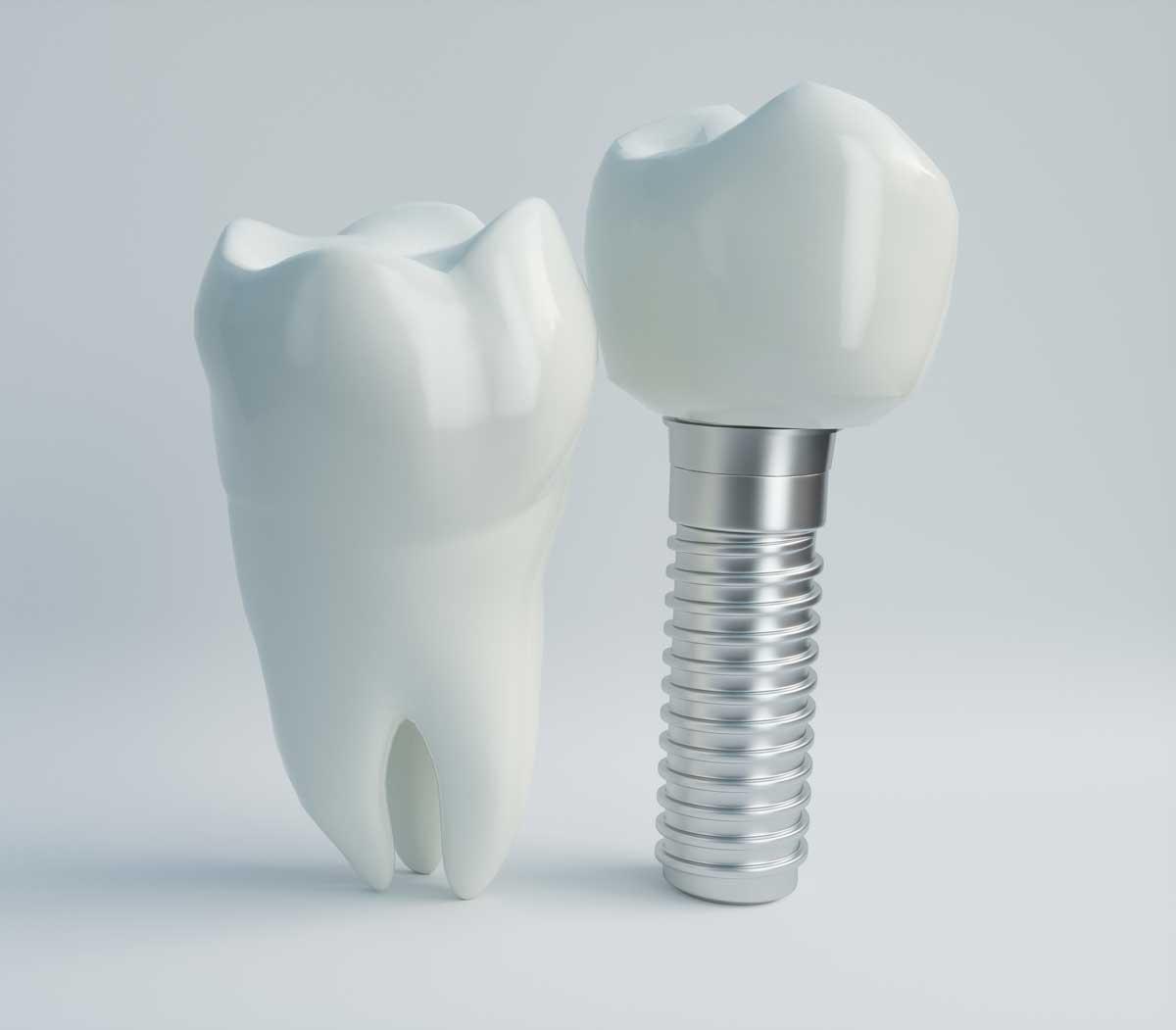 Zahnarzt Implantate Groß-Umstadt