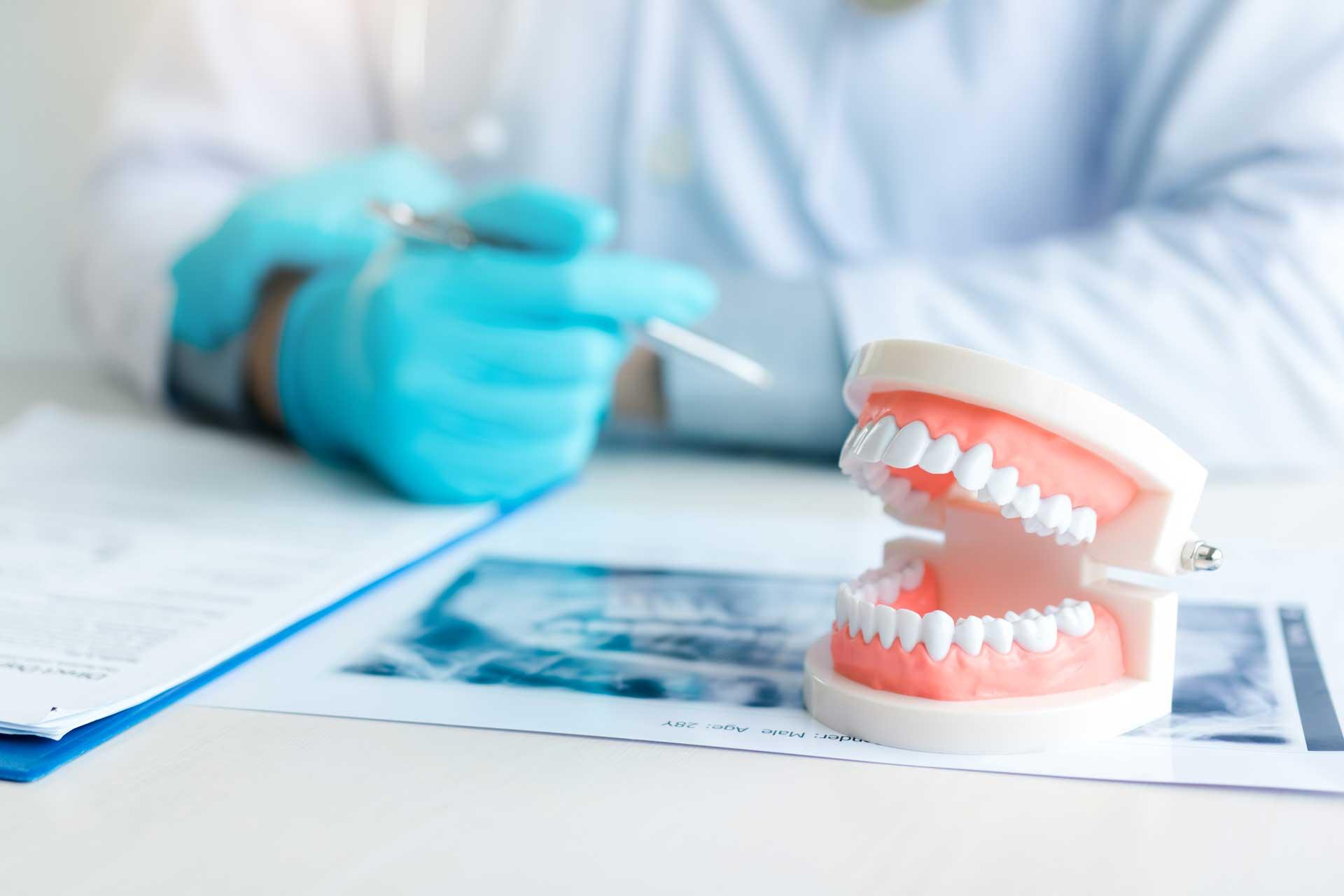 Zahnersatz Implantate Gross-Umstadt