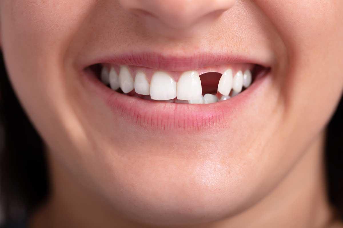 Zahnersatz Zahnluecke Groß-Umstadt